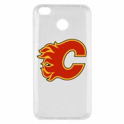 Чехол для Xiaomi Redmi 4x Calgary Flames - FatLine