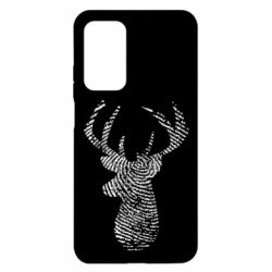 Чохол для Xiaomi Mi 10T/10T Pro Imprint of human skin in the form of a deer