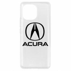 Чохол для Xiaomi Mi11 Acura logo 2
