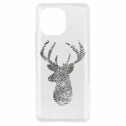Чохол для Xiaomi Mi11 Imprint of human skin in the form of a deer