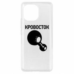 Чохол для Xiaomi Mi11 Кровосток Лого
