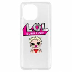 Чехол для Xiaomi Mi11 LoL surprise baby