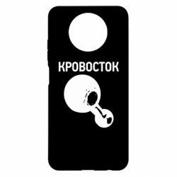 Чехол для Xiaomi Redmi Note 9 5G/Redmi Note 9T Кровосток Лого