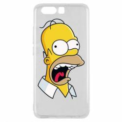 Чехол для Huawei P10 Crazy Homer! - FatLine