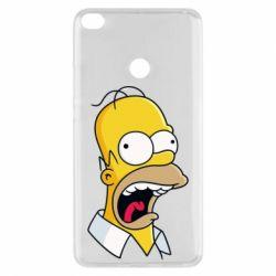 Чехол для Xiaomi Mi Max 2 Crazy Homer! - FatLine