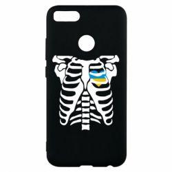 Чохол для Xiaomi Mi A1 Скелет з серцем Україна
