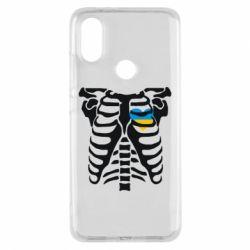 Чохол для Xiaomi Mi A2 Скелет з серцем Україна